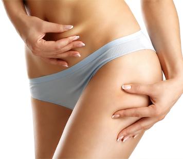 Woman who had non invasive fat removal procedures