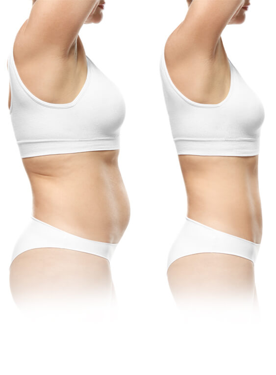 Before and after results photo of non surgical body contouring