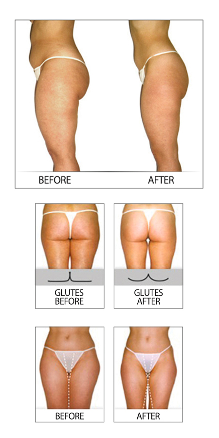 Before and after of a woman who used Endermologie treatment