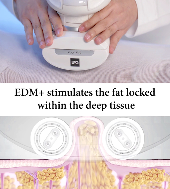 Infographic about the benefits of endermologie treatment