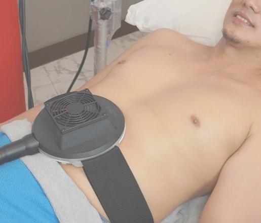 Fat reduction procedure for men