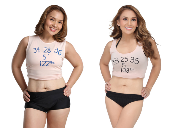 Before and after results of fat reduction service post pregnancy body