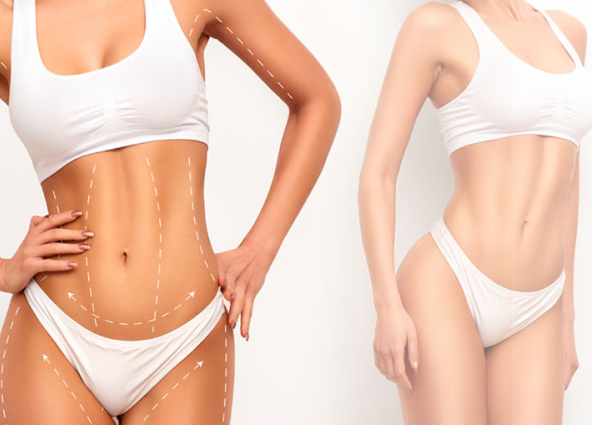 fat reduction services in marie france