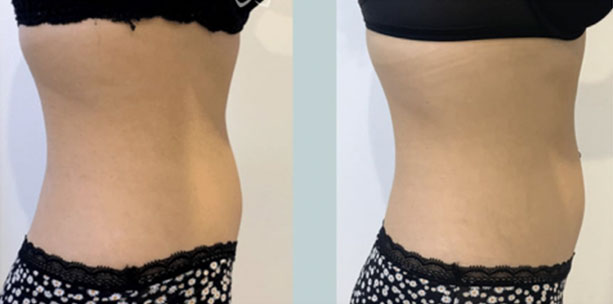 Before and after results of fat reduction procedure abdominal