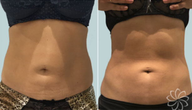 before and after results of non invasive fat reduction procedure