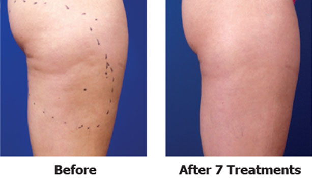 Before and after seven thermo magnetic pulse treatments on legs and buttocks