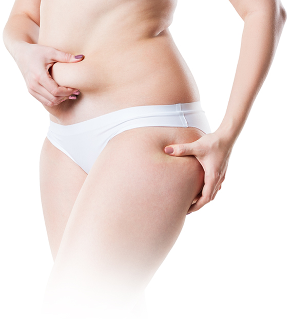 Areas that tripollar cellulite treatment targets