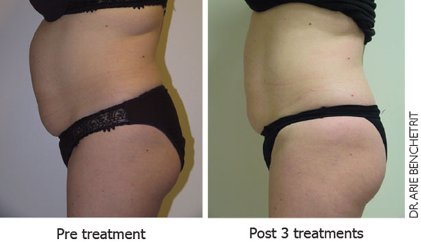 ultra shape benefits