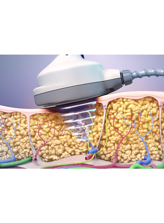 Ultrashape treatment procedural diagram
