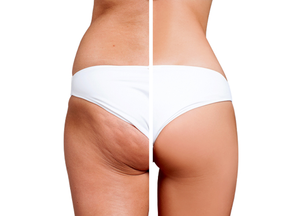 Before and after Vela Contour Procedure