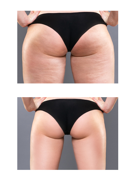 Before and after results of vela contour treatment for lower body and buttocks