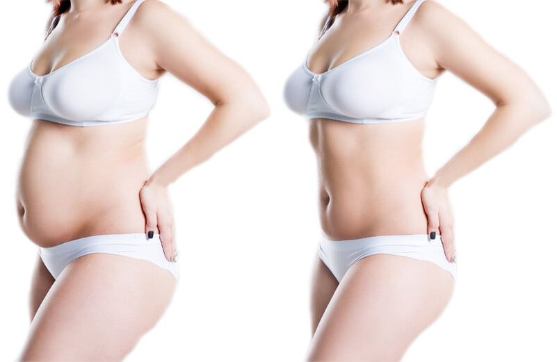 Before and after non invasive fat removal procedures