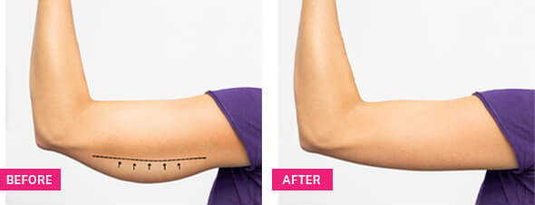 before and after skin tightening procedure